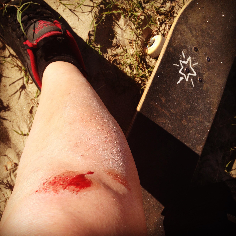 Knee scrape